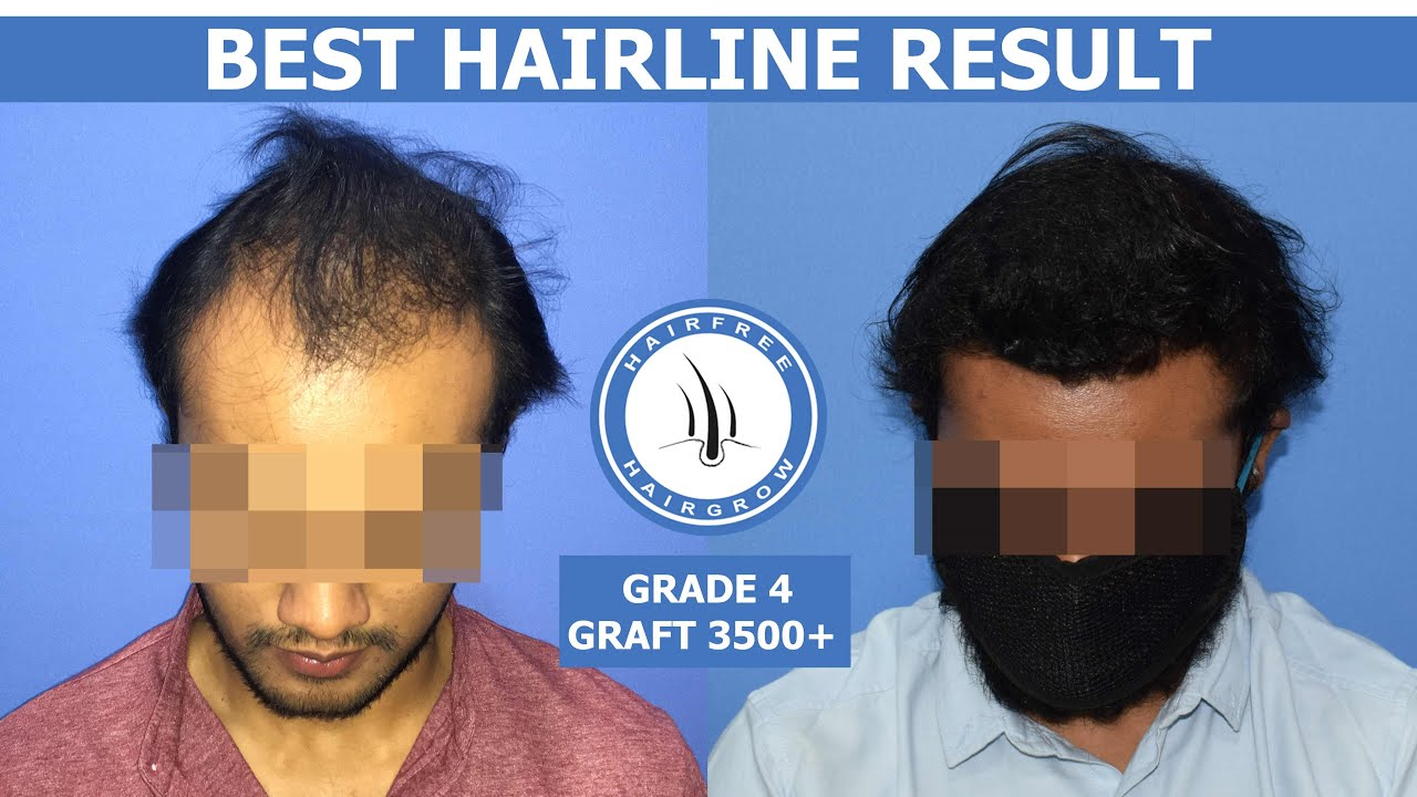 Hair Transplant Results Of Frontal Hair Loss & Receding Hairline | Natural Hairline Result in HFHG