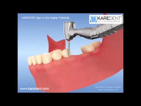 Diş Hekimi Namık Kemal Aydın KÖPRÜ PROTEZİ