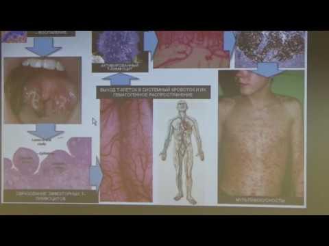 Иммунный патогенез псориаза и псориатического артрита