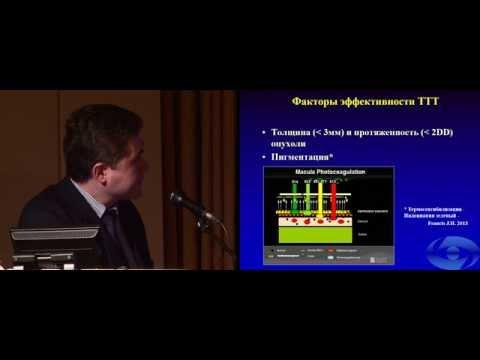 Транспупиллярная диод-лазерная термотерапия в лечении интраокулярной ретинобластомы у детей
