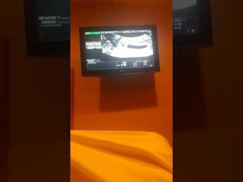 7 week ultrasound. Twins?