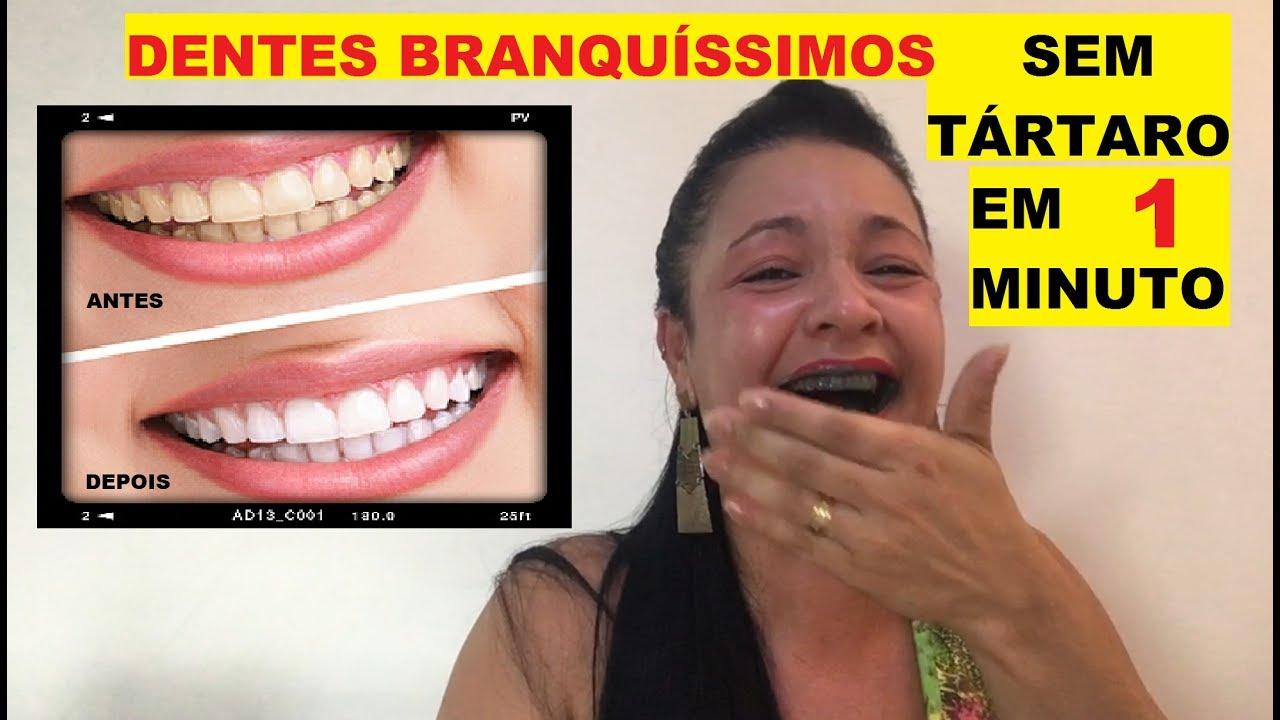Sem Tartaros Em 1 Minuto Dentes Brancos Dica Caseira Youtube