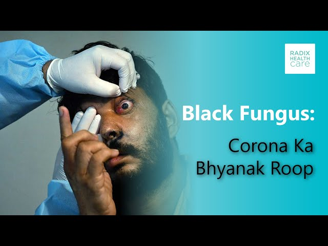 What's the link between COVID-19 and black fungus? Dr. Shruti Malik on India News
