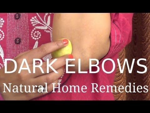 Dark Elbows - Natural Home Remedies