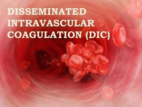 Disseminated Intravascular Coagulation