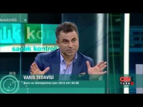 Prof. Dr. Ahmet AKGÜL Ile Varis Doppler  Ve Varis Tedavileri