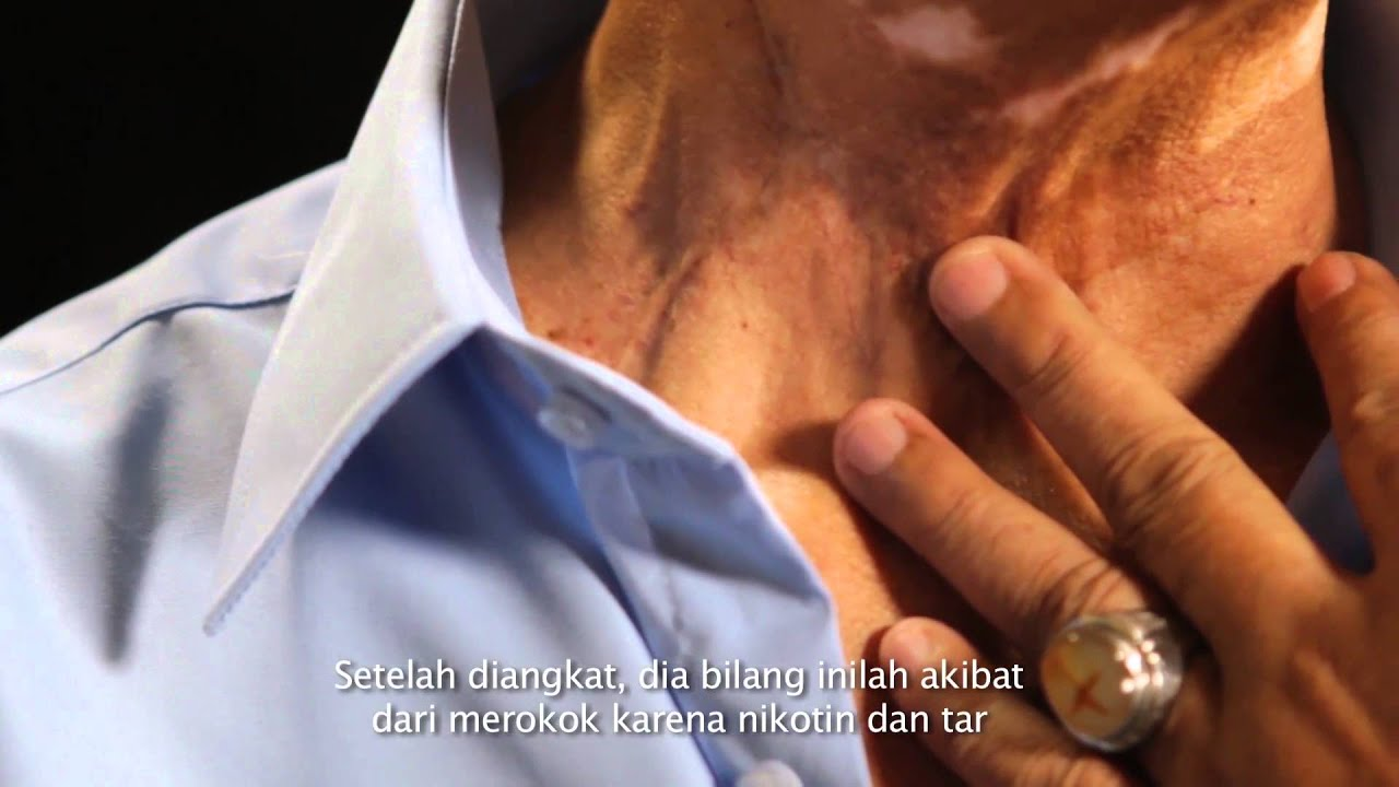 Korban Dari Rokok Kanker Pita Suara - YouTube