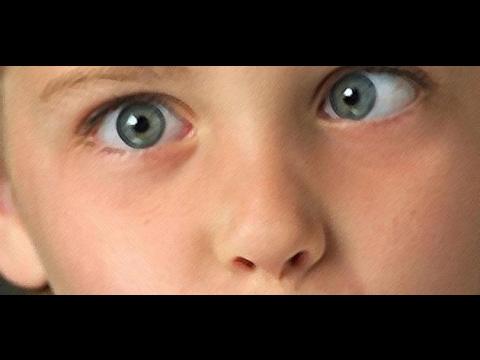 98ba41691 كيف أعالج عيني من الحول - YouTube