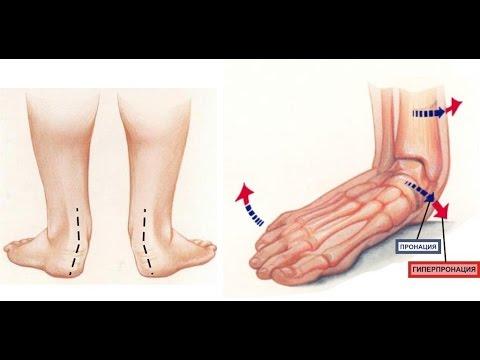 Подагра: признаки и лечение, симптомы, что за болезнь, как