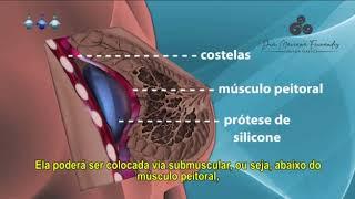 Prótese de Mama - @tododiaplastica (Dra Mariana Fernandes   CRM SC 18651    RQE 18864)