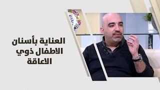 د. خالد عبيدات - العناية بأسنان الاطفال ذوي الاعاقة