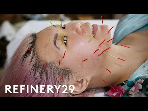 I Tried This Intense Acupuncture Facial | Beauty With Mi | Refinery29