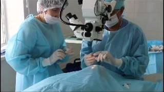 Удаление катаракты, замена хрусталика.avi