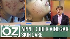 hqdefault - Apple Cider Vinegar Acne Forums