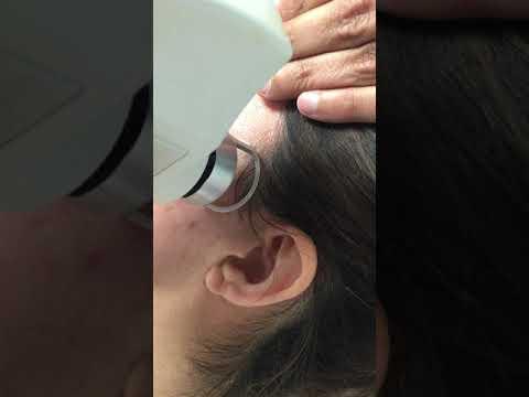 C02 Fractional Skin Resurfacing Laser Treatment