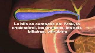 Calculs biliaires   Symptômes   Définition   Diagnostic   Traitements