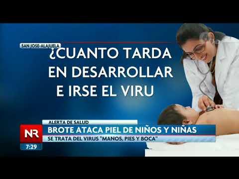 Virus Manos Pies Y Boca Ataca La Piel De Los Niños Ticos Youtube