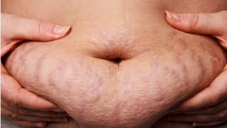 How to Get Rid of Stretch Marks Fast - Get Rid of Stretch Marks Naturally thumbnail