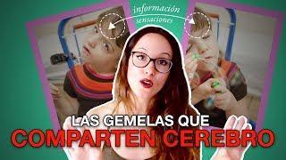 LAS GEMELAS QUE COMPARTEN CEREBRO | Tatiana y Krista Hogan