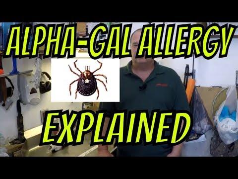 Alpha Gal Allergy Explained