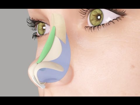 Saddle Nose or Ski Slope Nose Rhinoplasty Nosejob