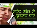 मुंहासों के घरेलू इलाज | How To Remove Whiteheads At Home Naturally In Hindi | Live Vedic