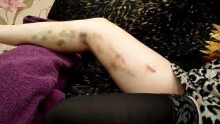Как выглядят ноги, через десять дней после лазерной коагуляции вен.(, 2016-03-10T21:19:07.000Z)