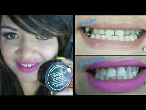 Carbon Coco teeth whitening first impression / Makeup by Esolindia
