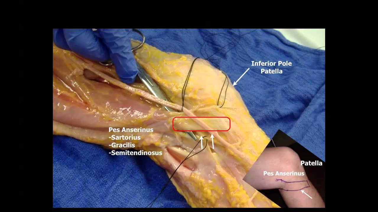 Saphenous Nerve Below the Knee - YouTube