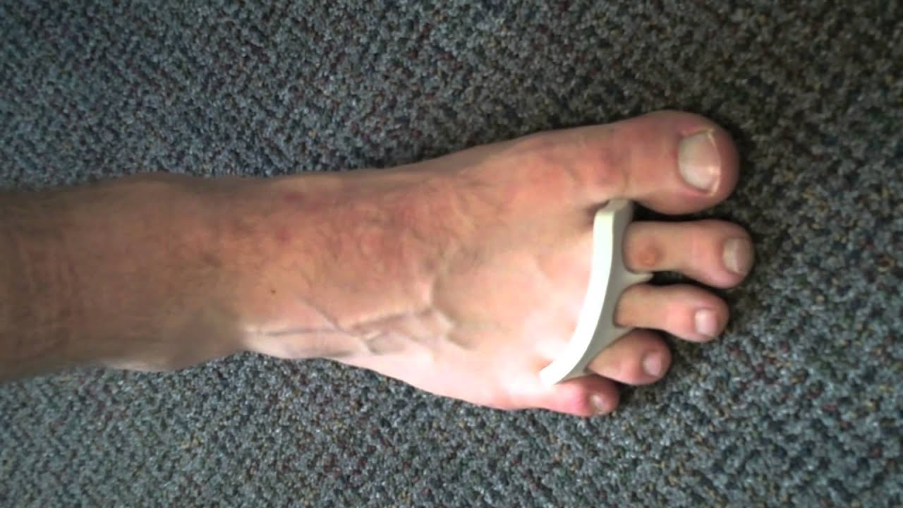 Intrinsic Foot Exercises Youtube