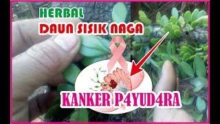 Kanker Payudara Stadium 4 Sembuh Berkat Bajakah | Siswa Juara Dunia Penyembuh Kanker - AIMAN (5).