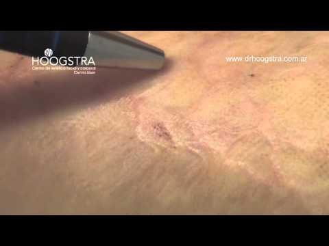 Cicatrices queloides por quemadura (15050)