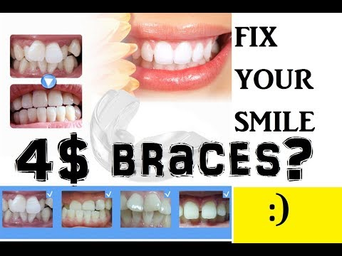 LAZADA UNBOX! Cheap Dental Teeth Trainer : Fix Your Smile :)