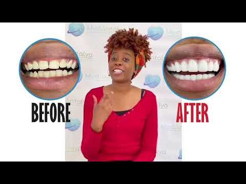Hollywood Smile   Best Dental Clinic in Turkey   Zirconium Crowns