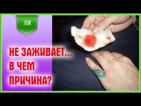 Почему болит зажившая рана