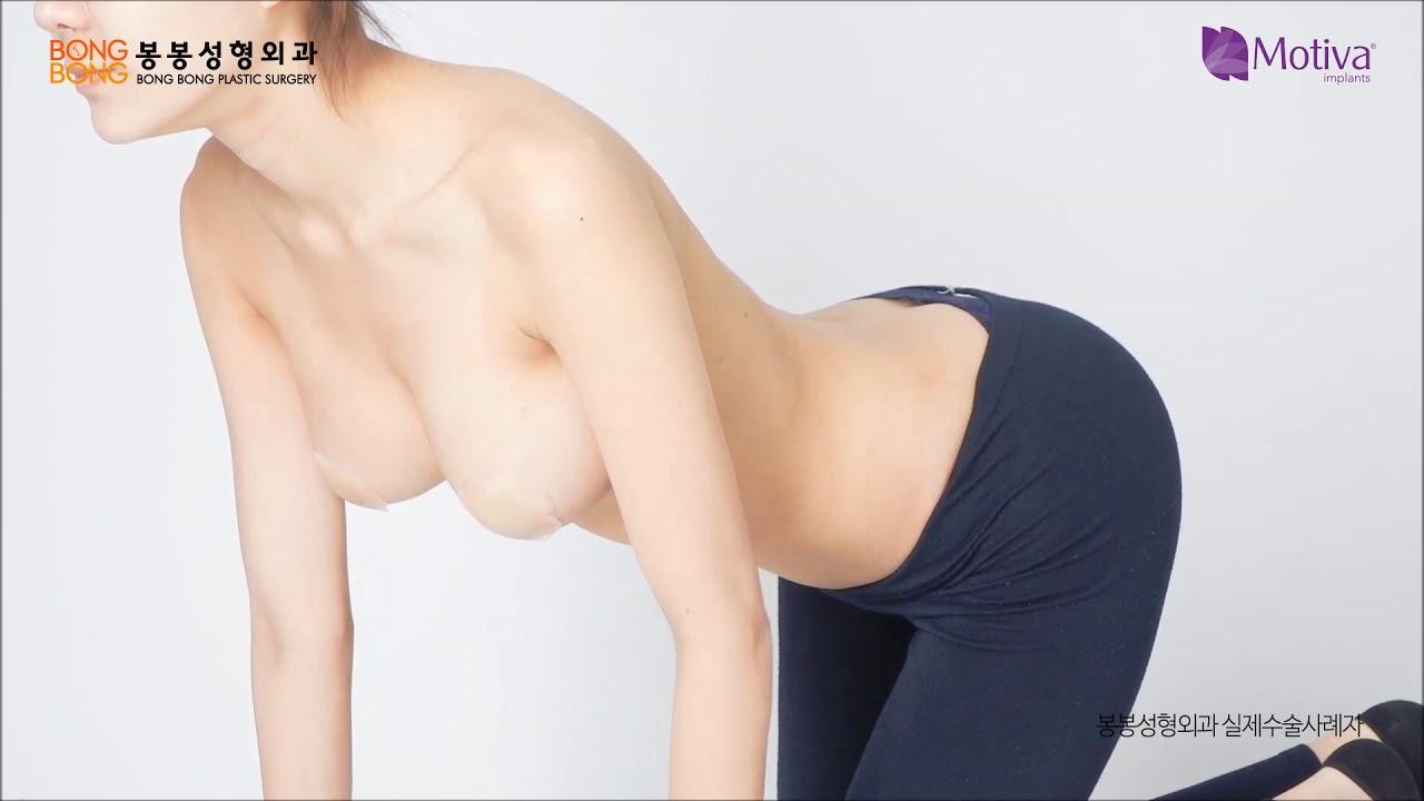 모티바X봉봉성형외과 리얼모델 자연스러운 가슴 움직임영상 전격공개! #1