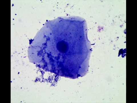 Cheek epithelial cells how to prepare a wet mount microscope slide cheek epithelial cells how to prepare a wet mount microscope slide ccuart Image collections