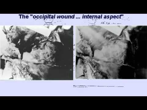 Missing Jfk Autopsy Photo Found Jfk Autopsy Part I Youtube