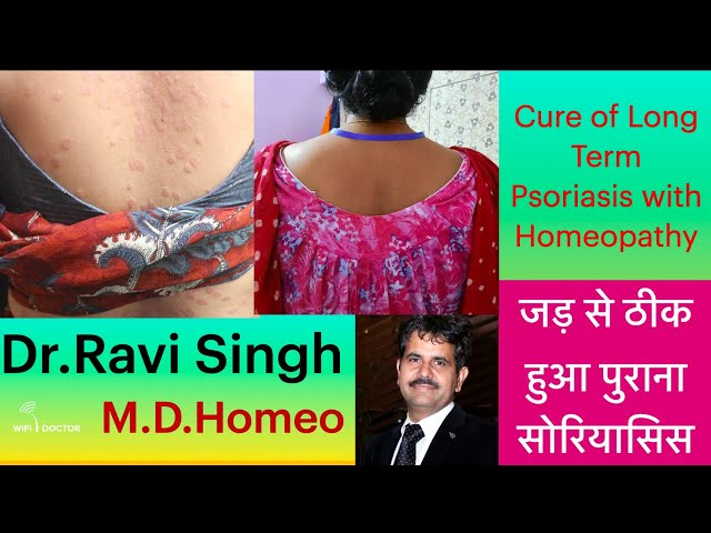 Long Term Psoriasis Cured By Classical Homeopathy Dr.Ravi Singh