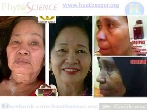 What Is Stem Cell Double Stem Cell Phytoscience Madhya