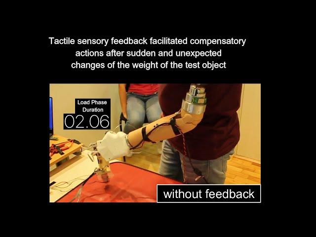 Neural sensory feedback in bionic prostheses