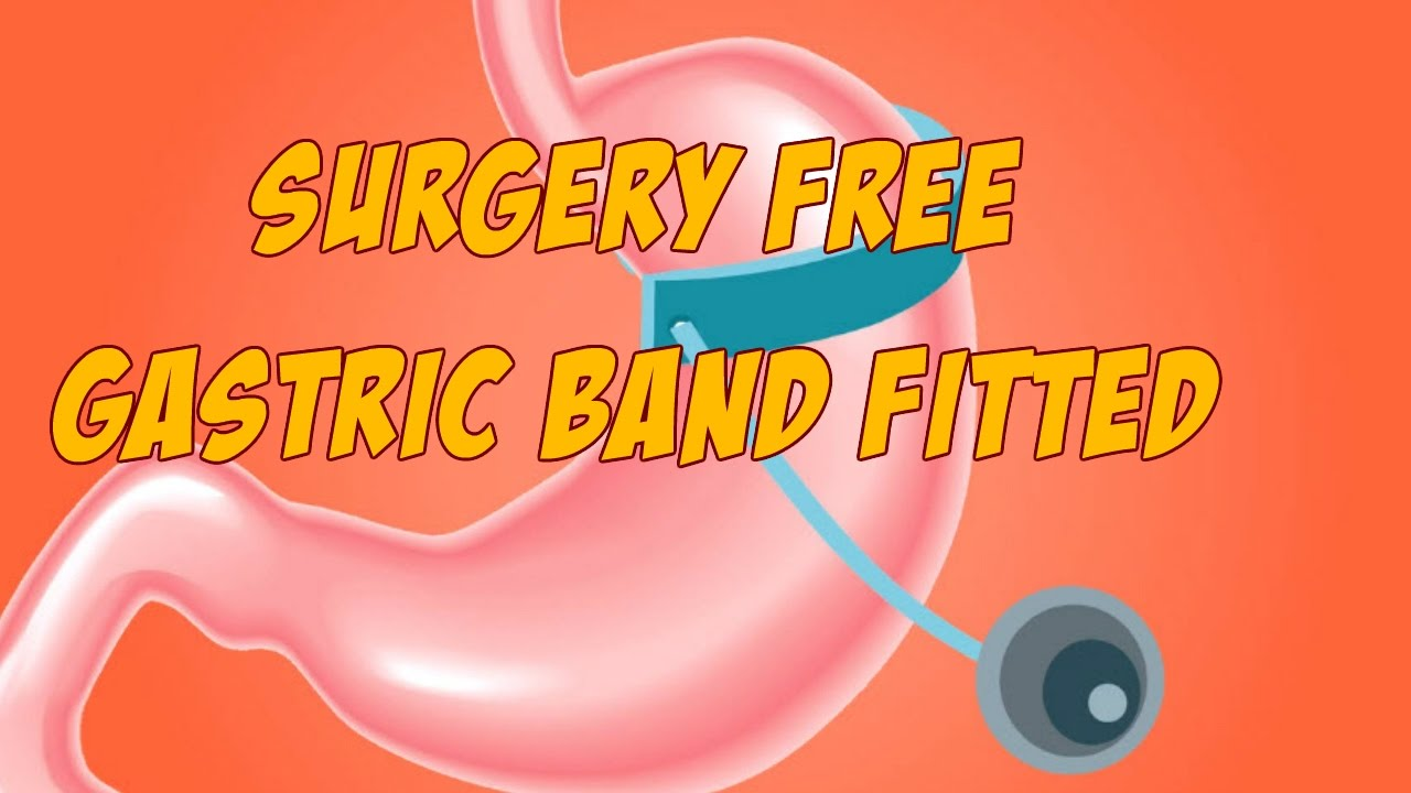 Surgery Free Gastric Band Fitted Hypnosis Session Youtube