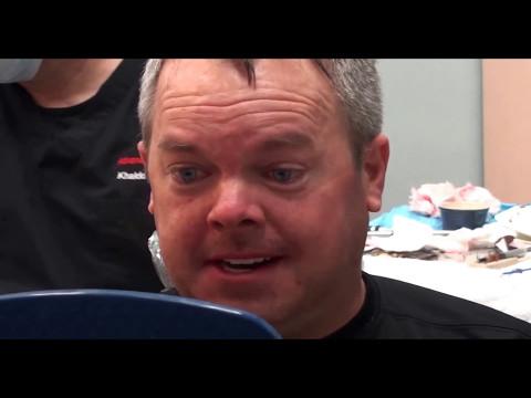 all-on-4™-technique-for-full-arch-dental-implants---k1-implant-choice---khaldoun-attar,-dds