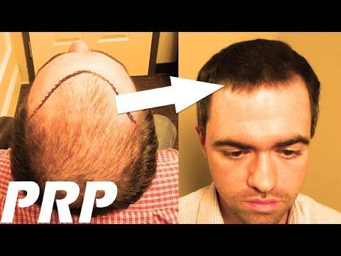 hair-transplant-combined-with-prp---before-and-after