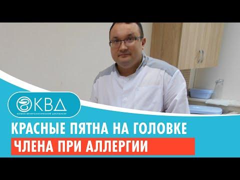 Красные пятна на головке члена при аллергии. Клинический случай №131