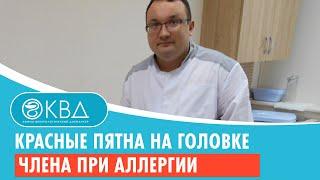 Фото Красные пятна на головке члена при аллергии. Клинический случай №131