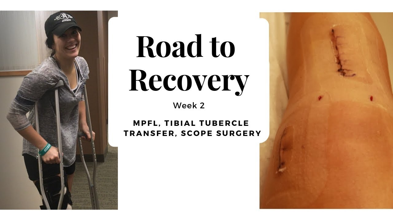 Download Week 2 : MPFL, Tibial Tubercle Osteotomy, Scope