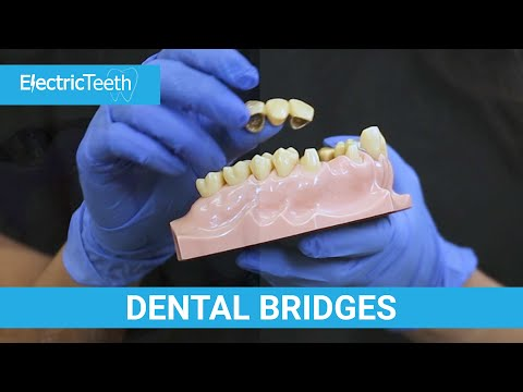 Dental Bridges Explained (False Teeth Alternative)