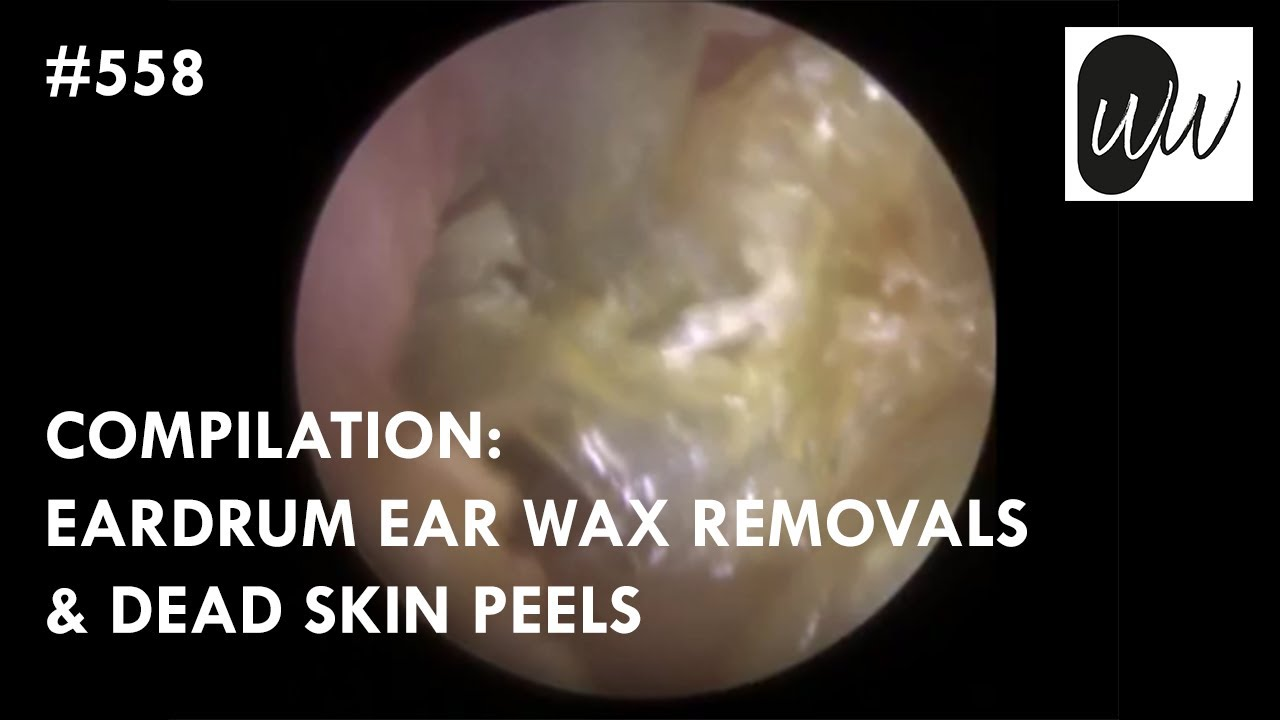 558 - COMPILATION: Eardrum Ear Wax Removals & Dead Skin Peels