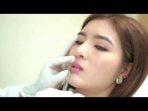 Lily Luta sau khi được bác sĩ Chiêm Quốc Thái phẫu thuật thẩm mỹ toàn diện và tiêm môi